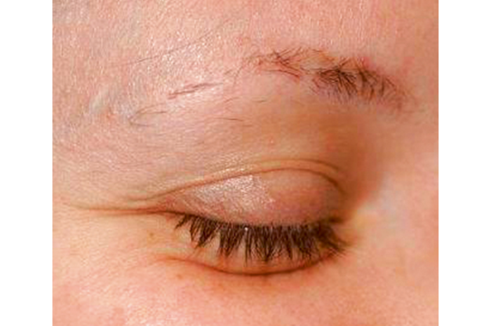 cosmetic tattoo after