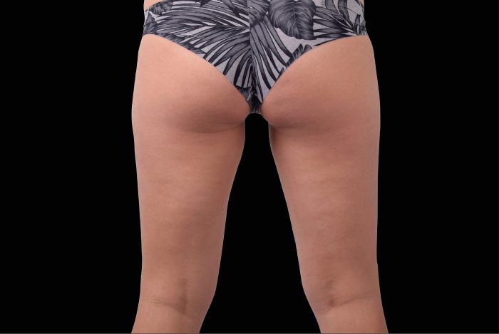 Embody_female_buttocks-after