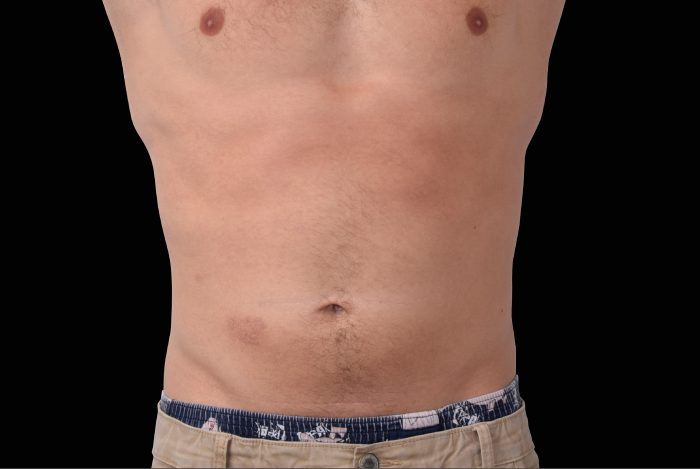 Embody_male_abs-after